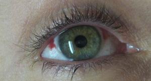 EyeScars